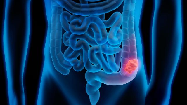 Setembro Verde faz alerta para prevenção ao câncer de intestino