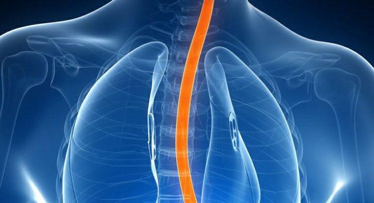 Ciência e tecnologia: Novo tratamento para Esôfago de Barrett chega à RMC